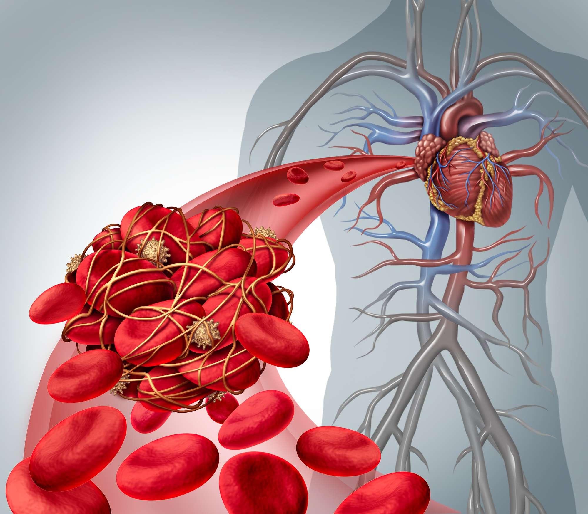 Előzze meg a vérrög kialakulását véralvadás panel vizsgálattal