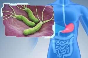 Helicobacter szűrés a gyomorproblémák kiszűrésére