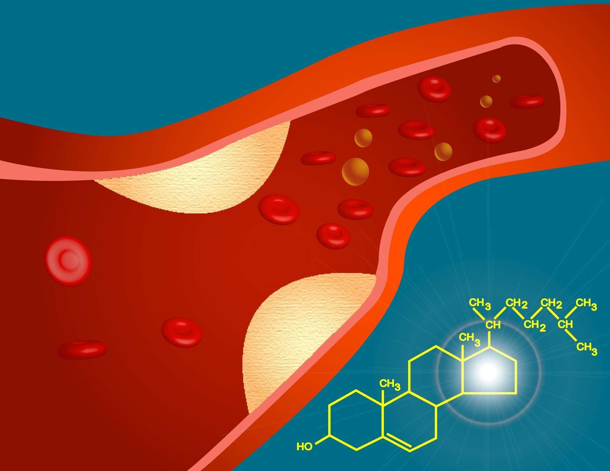 Koleszterinszint vizsgálható zsír anyagcsere panellel